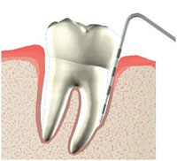 What is a Periodontal Analysis?